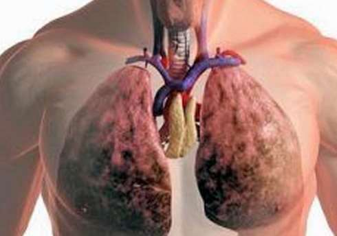 Все виды лечение рака легких