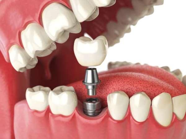 Какие методы и технологии применяются во время имплантации зубов?
