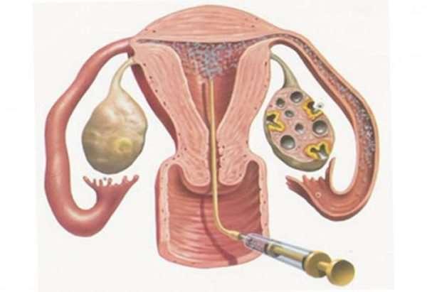 Искусственная инсеминация – современная репродуктивная технология