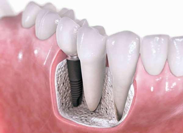 Проведение имплантации зубов в клинике «ВитаСмайл»