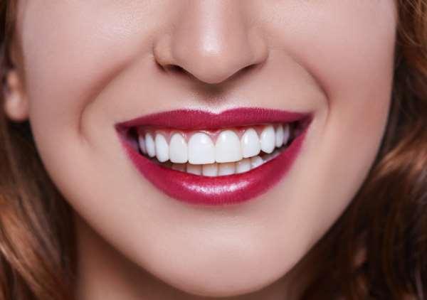 Основные виды современных виниров на зубы