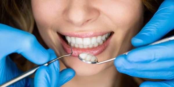 Хитрости, позволяющие сохранить зубы здоровыми