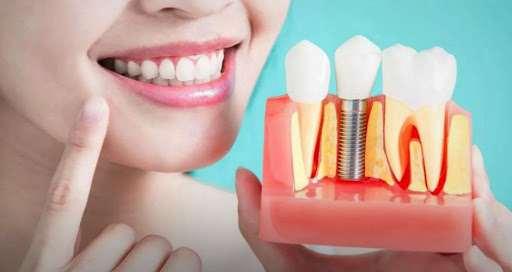 Имплантация зубов профильными специалистами под ключ