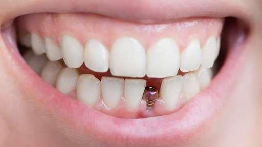 Быстрая и безболезненная имплантация зубов