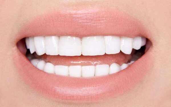 Виниры на зубы — идеальная улыбка