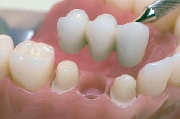 Несъемное протезирование зубов по доступной цене